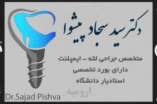 دکتر سید سجاد پیشوا جراحی لثه و ایمپلنت
